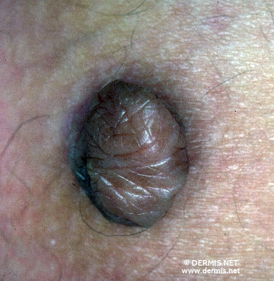 localisation: buttocks diagnosis: Nevus Lipomatodes Superficialis (Hoffmann-Zurhelle)