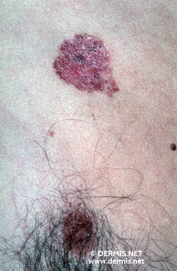 localisation: chest diagnosis: Basal Cell Nevus Syndrome Superficial Basal Cell Carcinoma