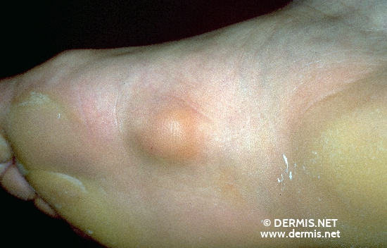 localisation: sole diagnosis: Plantar Fibromatosis