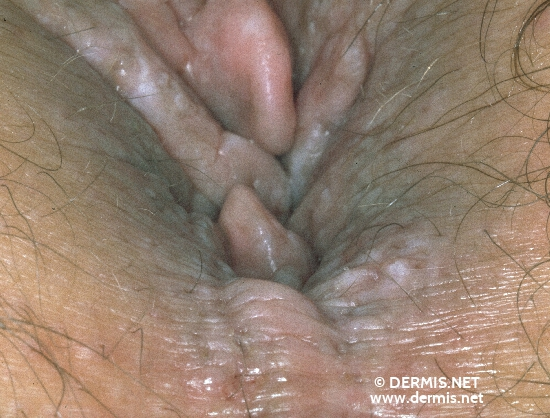 localisation: anogenital region diagnosis: Anal Tag
