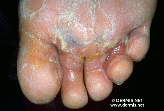 localisation: Interdigital region of the toes diagnosis: Gram-negative Infection of the Foot