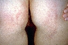 localisation: buttocks, diagnosis: Epidermal Nevus