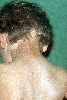 localisation: back of neck, upper back, diagnosis: Incontinentia Pigmenti