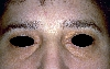 localisation: eyelids, diagnosis: Xanthelasma