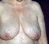 localisation: chest, diagnosis: Hirsutism