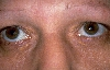 localisation: around the eyes, diagnosis: Xanthelasma