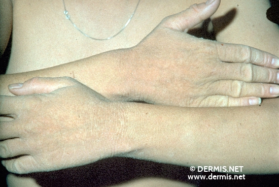 localisation: lower arms hands diagnosis: Ichthyosis Congenita