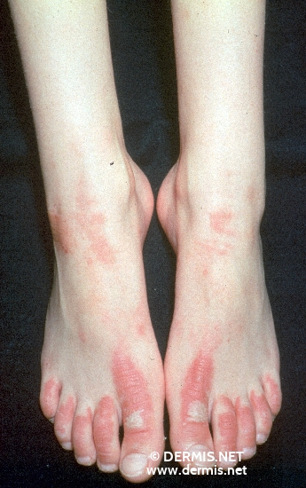 localisation: feet diagnosis: Erythrokeratodermia Figurata et Variabilis