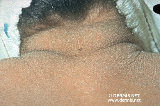 localisation: back of neck diagnosis: Ichthyosis Congenita