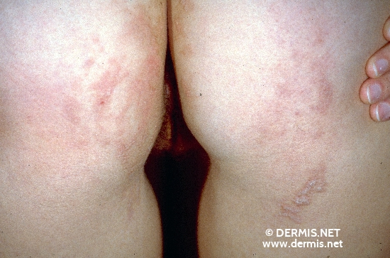 localisation: buttocks diagnosis: Epidermal Nevus