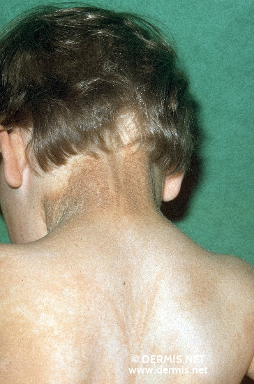 localisation: back of neck upper back diagnosis: Incontinentia Pigmenti