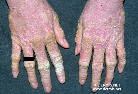 localisation: hands diagnosis: Epidermolytic Hyperkeratosis