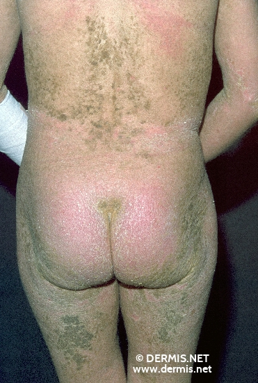 localisation: buttocks diagnosis: Epidermolytic Hyperkeratosis