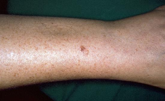 DermIS - Fibroepithelioma Pink...