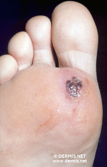 localisation: sole diagnosis: Foreign Body Granuloma