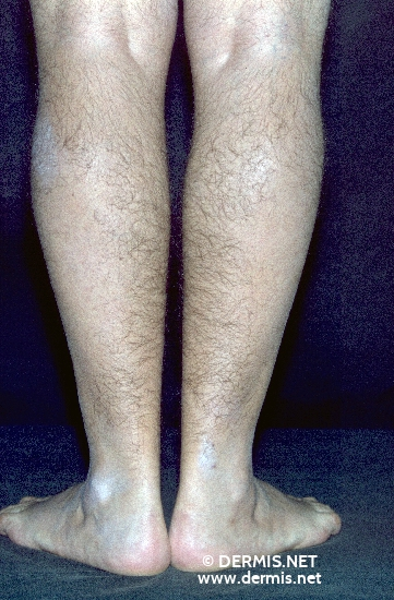 localisation: legs diagnosis: Alopecia Mechanica Hypertrichosis