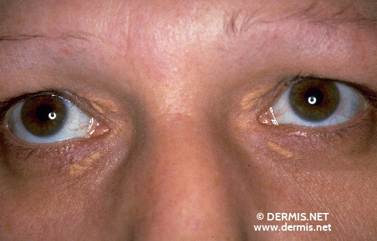localisation: around the eyes diagnosis: Xanthelasma