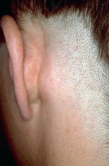 localisation: retro-auricular  diagnosis: Lymphadenopathy