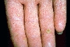 diagnostic: Arsenic Keratoses