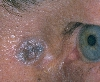 localisation: angle of the eye, diagnosis: Pigmented Basal Cell Carcinoma