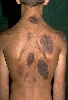 localisation: back, diagnosis: Melanosis Neurocutanea