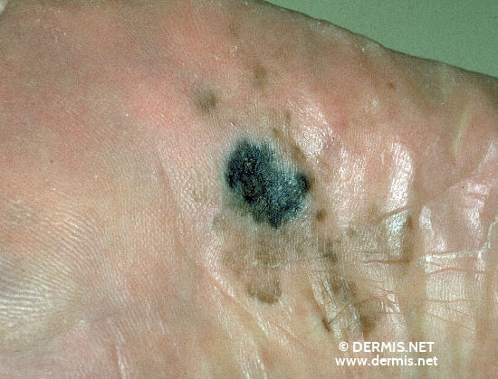 localisation: sole diagnosis: Acrolentiginous Melanoma (ALM)