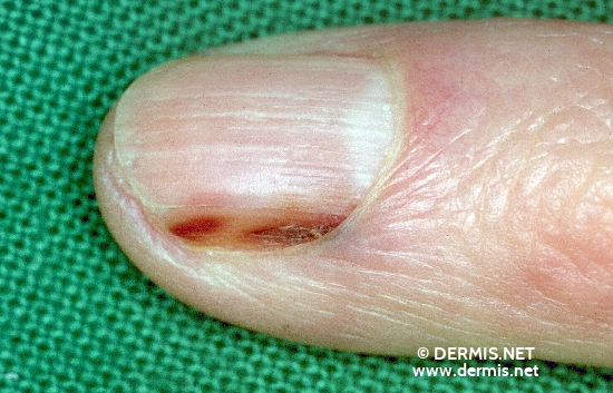 localisation: fingernail proximal nail fold of the finger diagnosis: Acrolentiginous Melanoma (ALM)