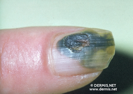 localisation: subungual (fingernail) diagnosis: Nails, Pigment Changes