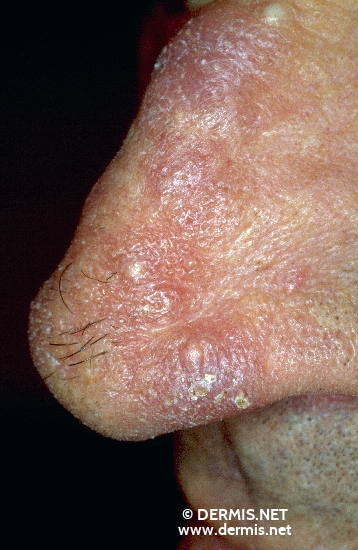 allergic contact dermatitis topical steroids