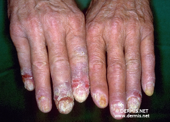localisation: nail plate of the finger diagnosis: Acrokeratosis Paraneoplastica Bazex