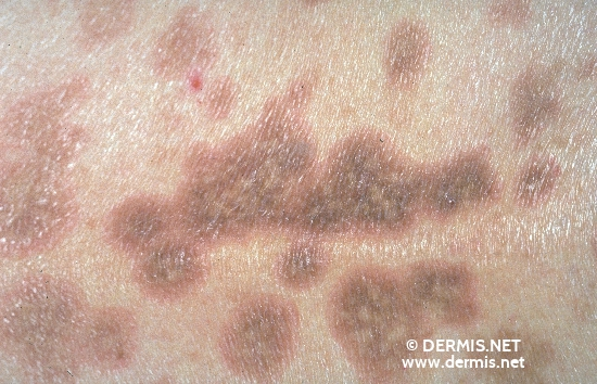 diagnosis: Lichen Planus Atrophicans