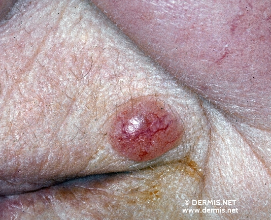localisation: upper lip diagnosis: Solid-Cystic Basal Cell Carcinoma