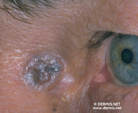 localisation: angle of the eye diagnosis: Pigmented Basal Cell Carcinoma