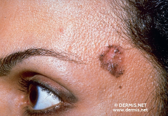 localisation: temples diagnosis: Pigmented Basal Cell Carcinoma
