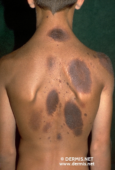 localisation: back diagnosis: Melanosis Neurocutanea