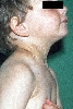 localisation: neck, axilla, diagnosis: Incontinentia Pigmenti