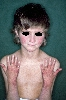 localisation: face, arms, back of the hands, diagnosis: Rothmund-Thomson Syndrome