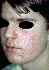 localisation: cheek, diagnosis: Atrophodermia Vermiculata, Acne Papulopustulosa