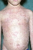 localisation: trunk, diagnosis: Linear IgA Dermatosis
