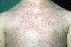 localisation: upper chest, diagnosis: Linear IgA Dermatosis