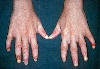 localisation: finger, fingernail, diagnosis: Epidermolysis Bullosa Hereditaria