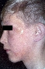 localisation: face, diagnosis: Localized Scleroderma