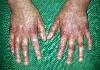 localisation: hands, diagnosis: Rothmund-Thomson Syndrome