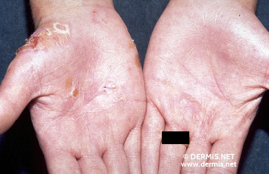 localisation: hands diagnosis: Epidermolysis Bullosa Hereditaria