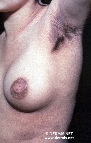 diagnosis: Acanthosis Nigricans Maligna