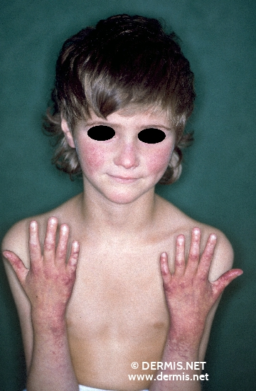 localisation: face arms back of the hands diagnosis: Rothmund-Thomson Syndrome