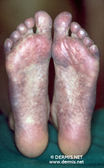 localisation: sole diagnosis: Rothmund-Thomson Syndrome
