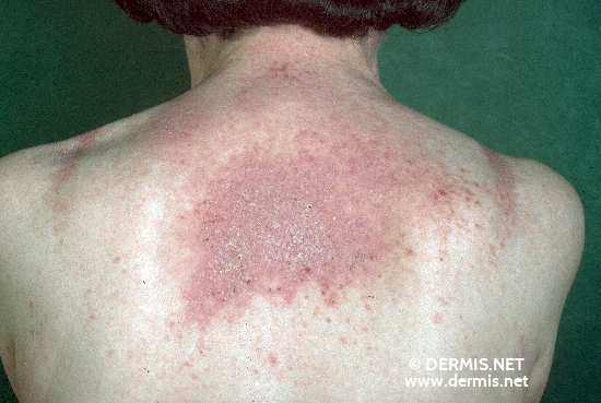 localisation: upper back diagnosis: Dyskeratosis Follicularis