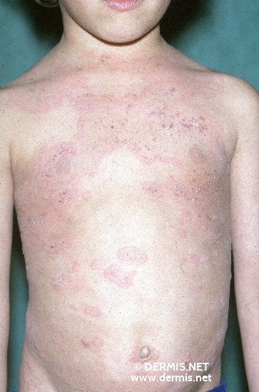 localisation: trunk diagnosis: Linear IgA Dermatosis