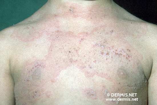 localisation: upper chest diagnosis: Linear IgA Dermatosis